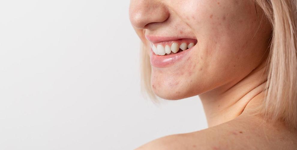 Грижа за мазна кожа: 5 съвета